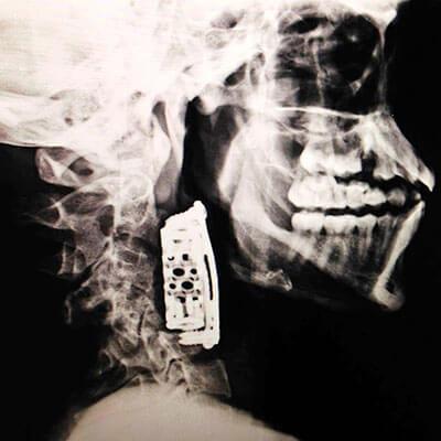 Foto de uma radiografia mostrando a lesão na coluna do José Ilson