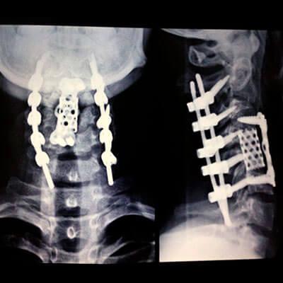 Foto de uma radiografia mostrando os pinos na coluna do José Ilson